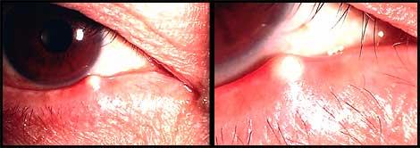 麦粒腫の例