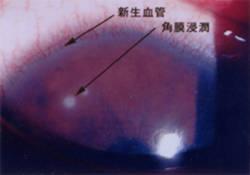 新生血管と角膜浸潤