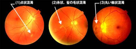 硝子体混濁の眼底写真
