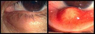 化膿性霰粒腫の例