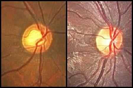 左)緑内障の眼底、右)正常の眼底