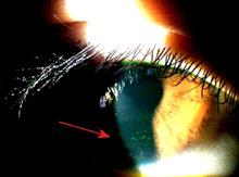 眼障害例A