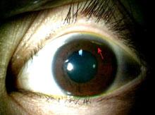 眼障害例B