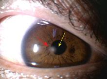 眼障害例D